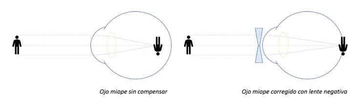 ¿Se cura la miopía? Corrección del ojo miope